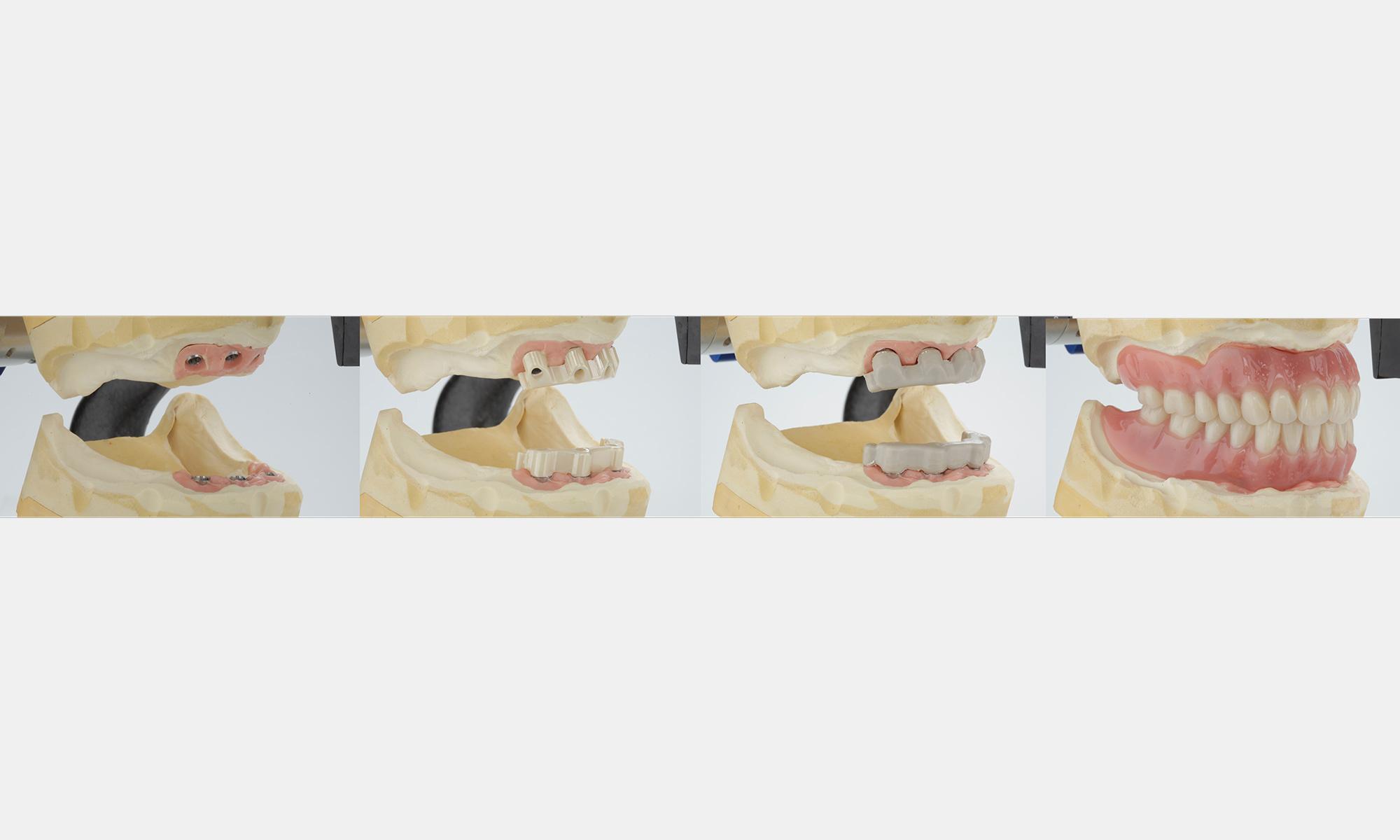 Step by Step - Zirkonstege/Peek Friktionselemente