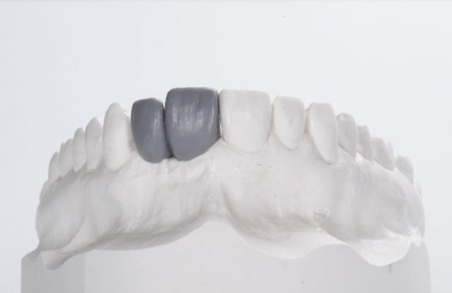 Wax Up - Individuelle Abutments